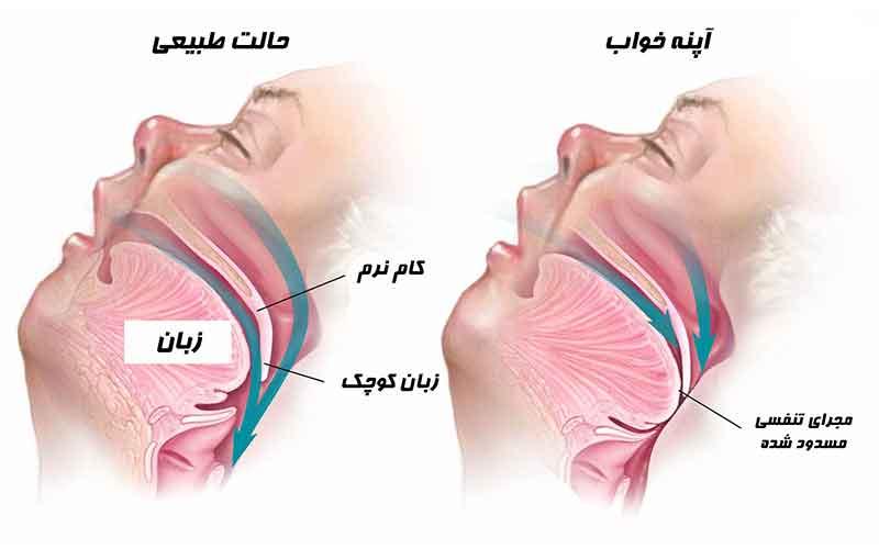 درباره آپنه خواب؛ علائم و درمان آن بیشتر بدانید