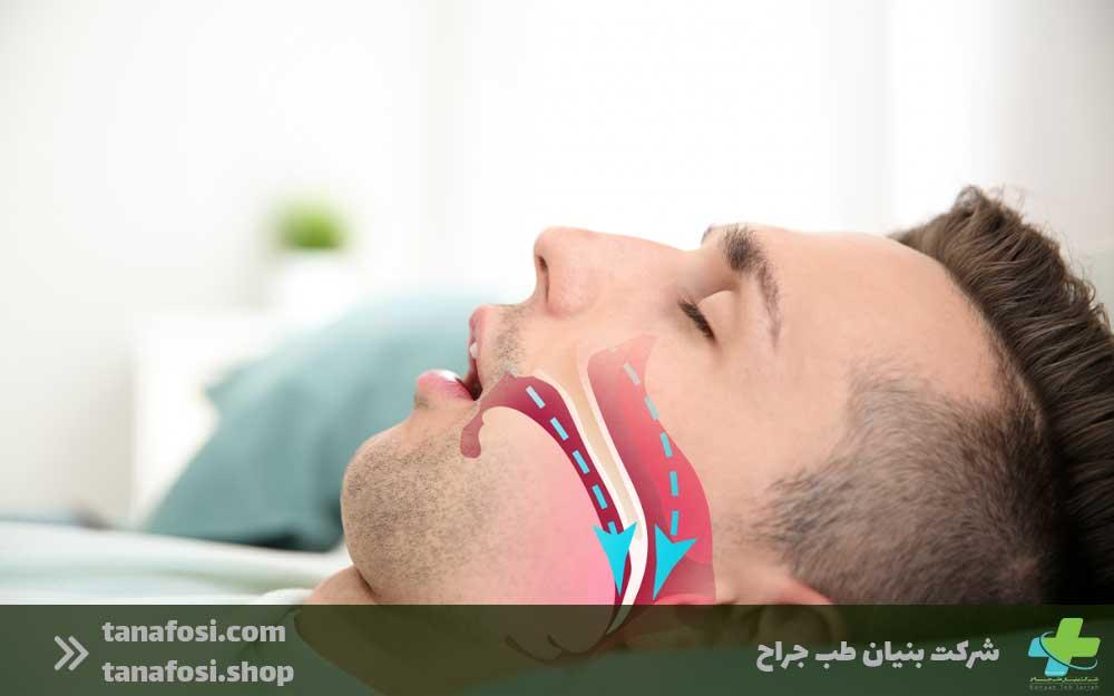 پیامدهای آپنه خواب بر سیستم عصبی